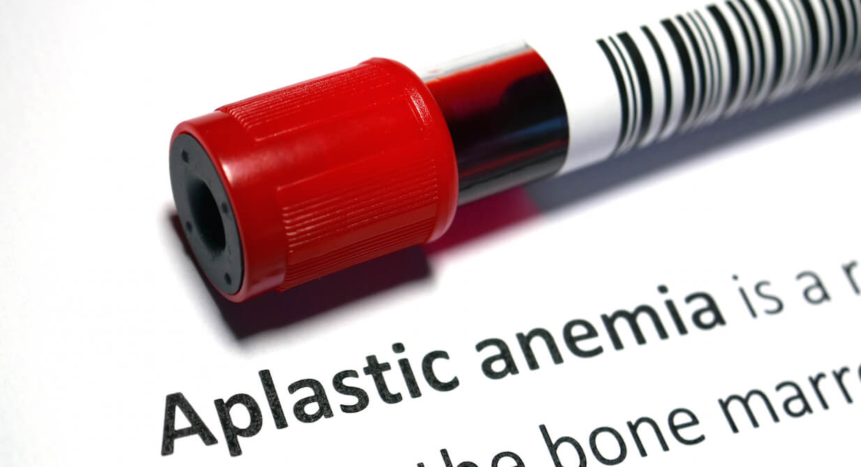 Aplastic Anemia Treatment
