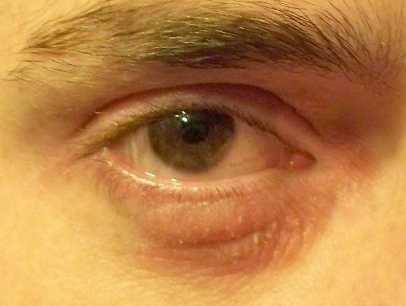 how to make redness of a pimple go away